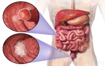 Does Fiber Play A Role Preventing Colon Cancer
